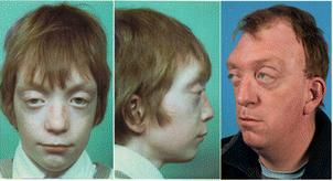 Forgotten Diseases Research Foundation | Crouzon syndrome