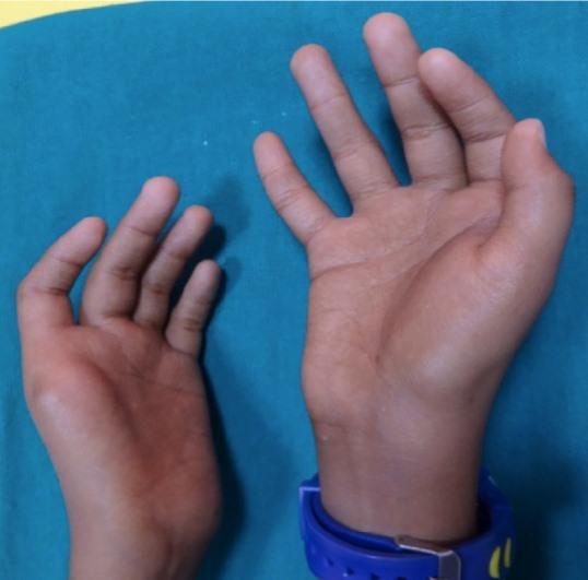 Fanconi anemia thumb