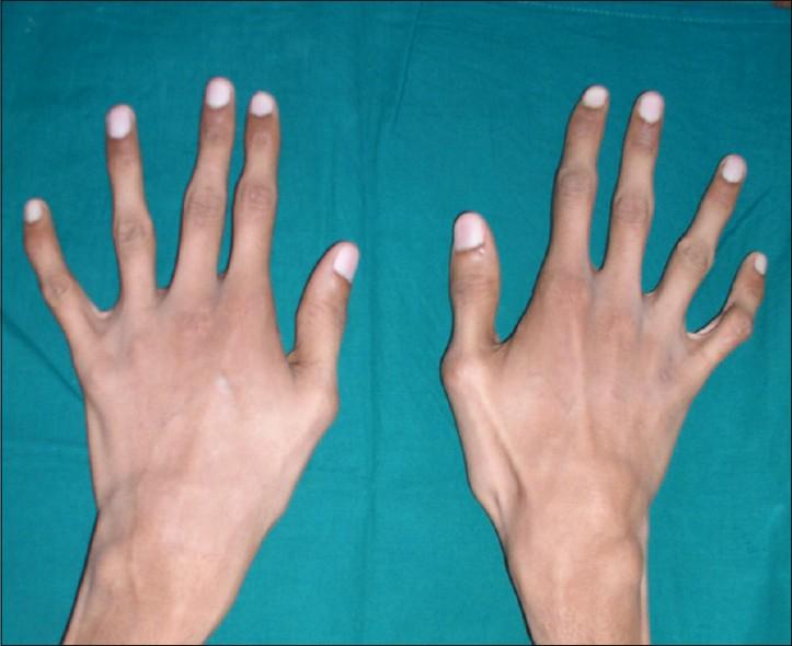 Как сделать чтобы пальцы рук были сильнейших