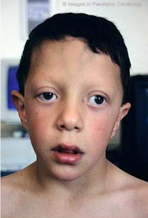 Noonan Syndrome Images...